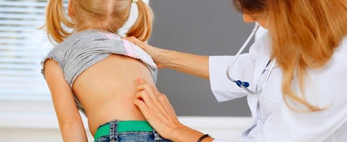 آیا اسکولیوز باعث فلج شدن میشود؟ اسکولیوز عصبی-عضلانی چیست؟
