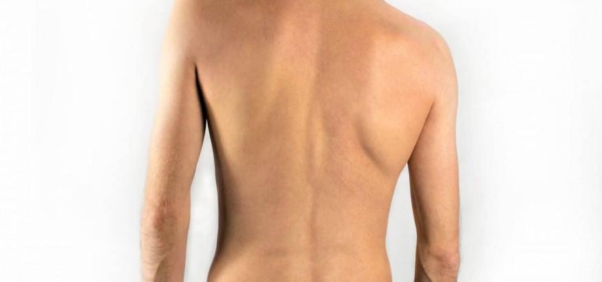 اسکولیوزیس به علت تروما