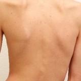 اسکولیوز در بزرگسالی و انواع روش های درمان بدون جراحی آن