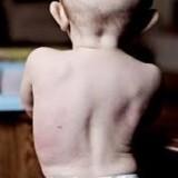 اسکولیوز مادرزادی (چرخش و کجی ستون فقرات نوزاد)؛ علائم و درمان بدون جراحی