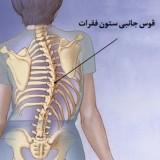 انواع اسکولیوز (خفیف، متوسط و شدید)؛ علایم، علت و درمان