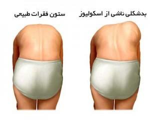 تشخیص اسکولیوز