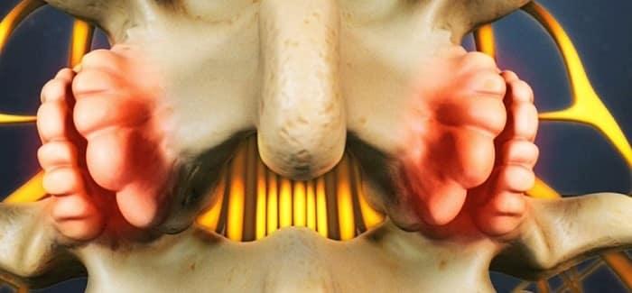 خار استخوانی (استئوفیت) چیست؟ درمان با روشهای فیزیوتراپی