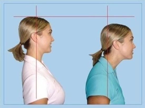 درمان سر وگردن به جلو (قوس گردن) با فیزیوتراپی و ورزش