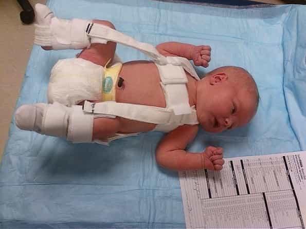 درمان شلی لگن نوزاد و دیسپلازی لگن