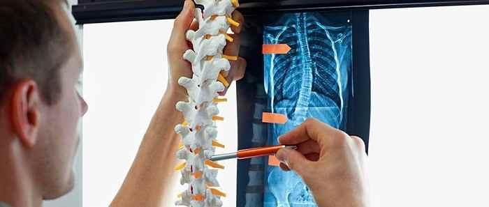درمان قطعی انحراف ستون فقرات (اسکولیوز) با ورزش، ماساژ و بریس-compressed