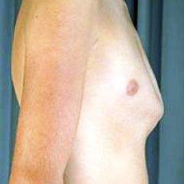 درمان قفسه سینه برجسته