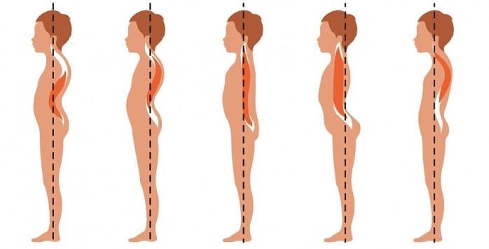 درمان و رفع گودی و قوس کمر با روشهای بدون جراحی