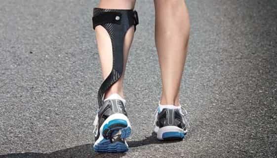 دستگاههای ارتز مچ پا برای اصلاح کف پای صاف