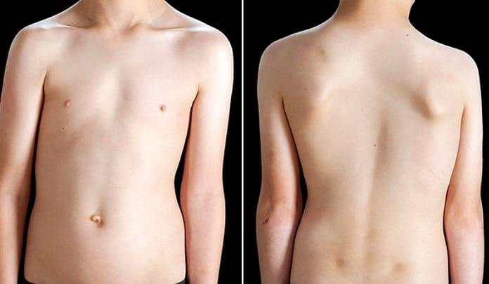علائم و نشانههای اسکولیوز چیست؟