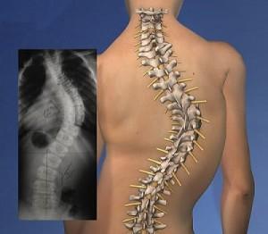 عوارض بیماری اسکولیوزیس در صورت عدم درمان چیست؟