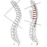 قوز پشتی (گوژ پشتی)؛ علائم و درمان آن با روشهای بدون جراحی