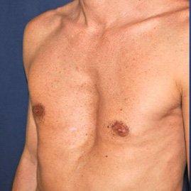 ورزش درمانی قفسه سینه فرورفته
