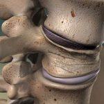 کایفوز شوئرمن چه علائمی دارد؟ درمان کایفوز شوئرمن بدون جراحی