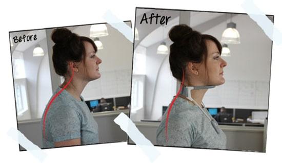 گردنبند طبی برای اصلاح وضعیت سر و گردن